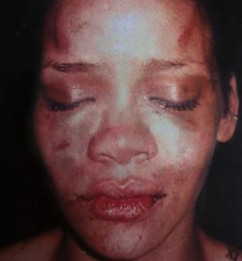 Rihanna's battered face