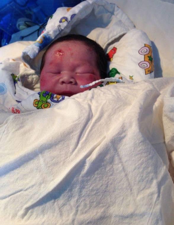 baby who miraculously survived. egosentrik.com